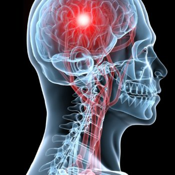 concussion options